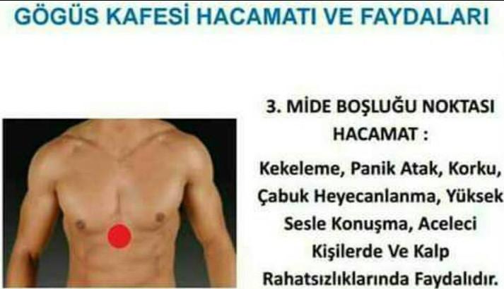 HACAMAT VE SÜLÜK TEDAVİSİ TORBALI-712